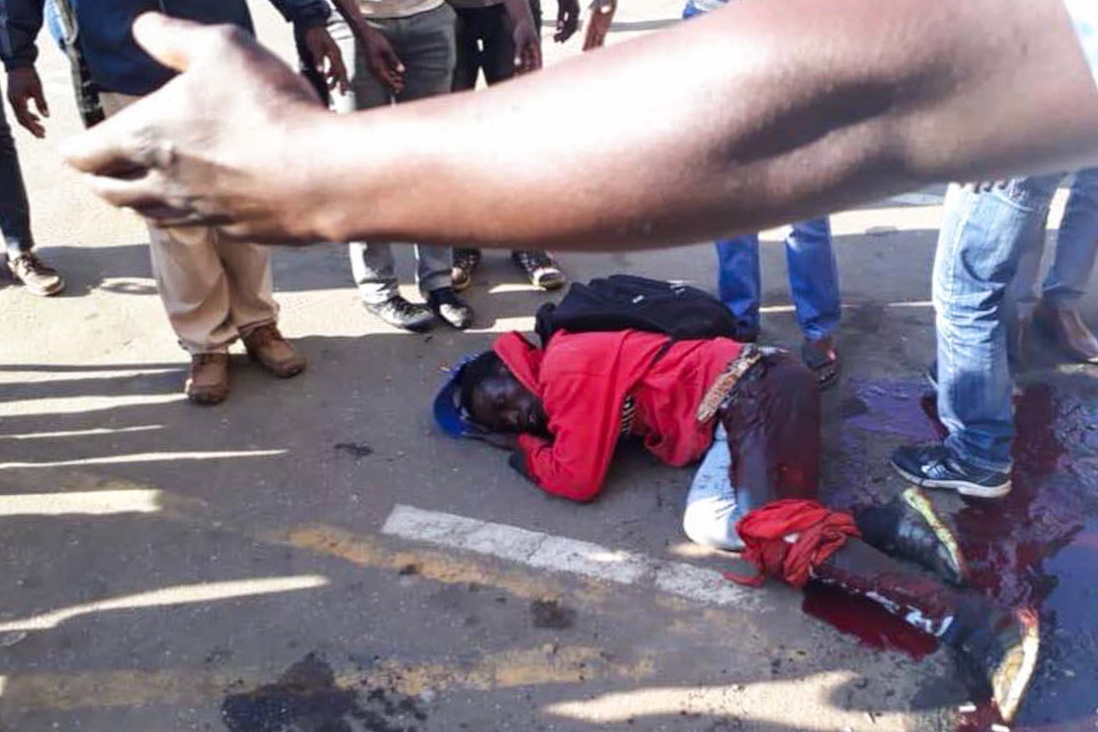 MDC supporter with leg wound after shooting