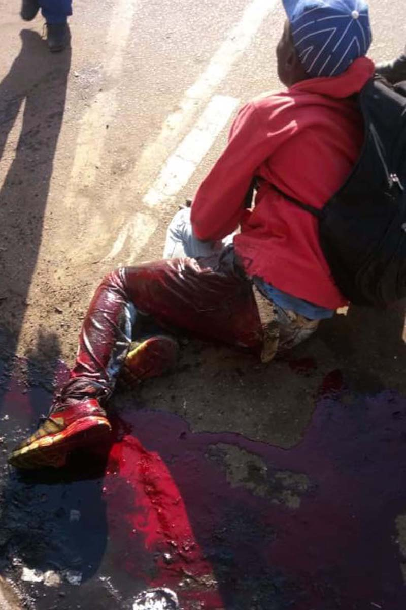 MDC supporter with leg wound