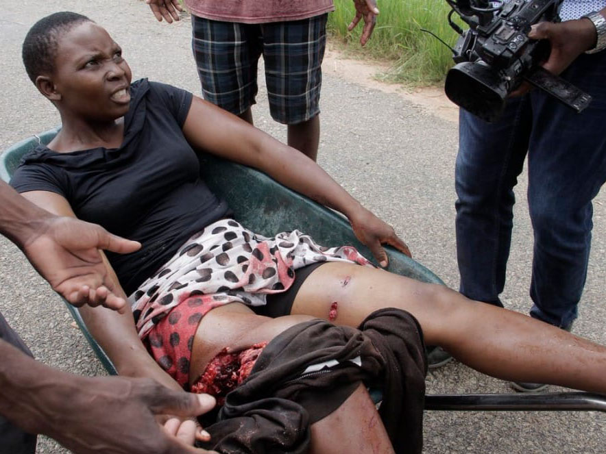Injuries during protests in Zimbabwe