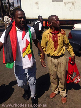 Injured protester is led away after beating by riot police in Zimbabwe