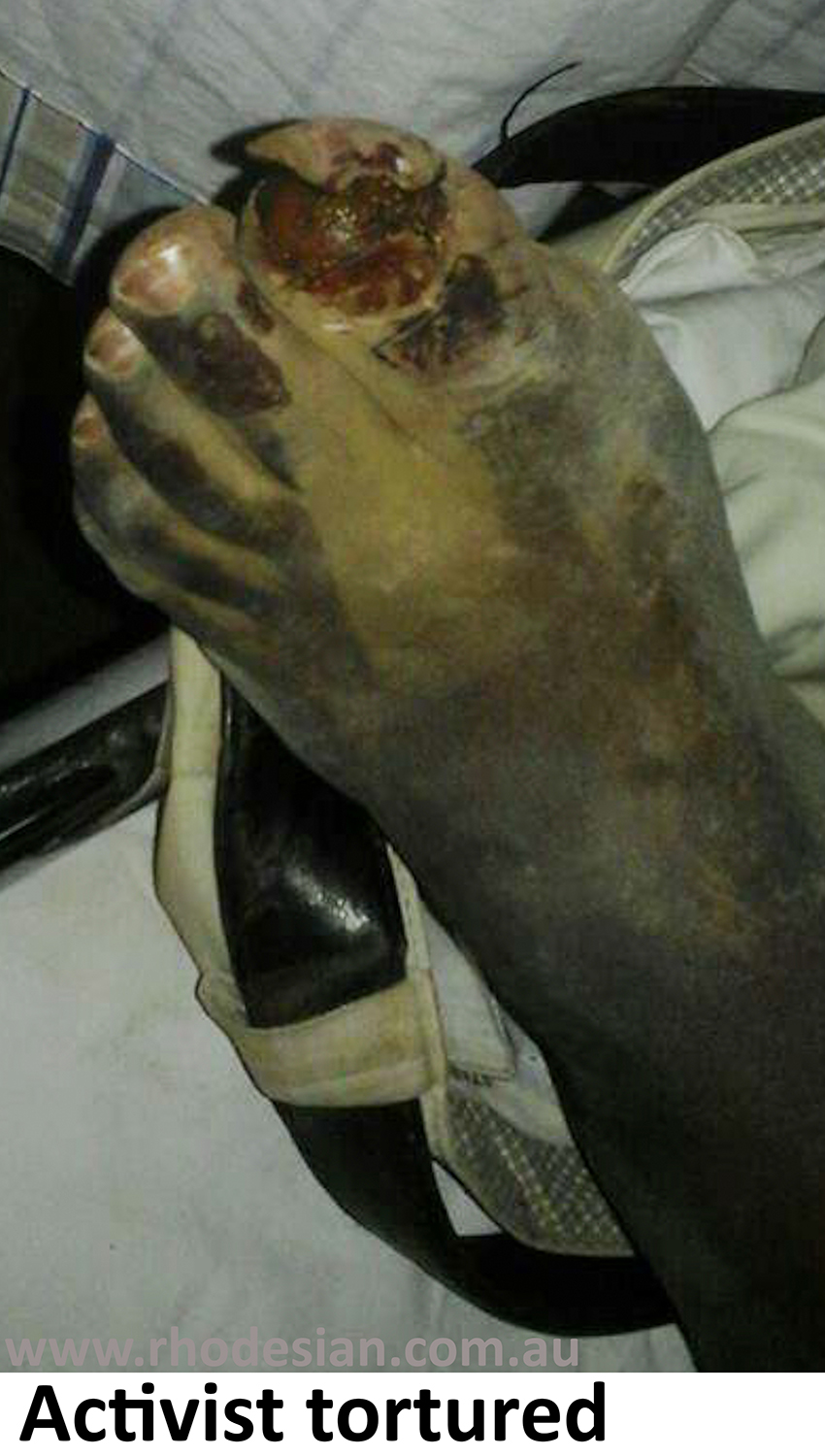 Zimbabwe activist Sylvanos Mudzvova was abducted but relased after torture and removal of big toe nail